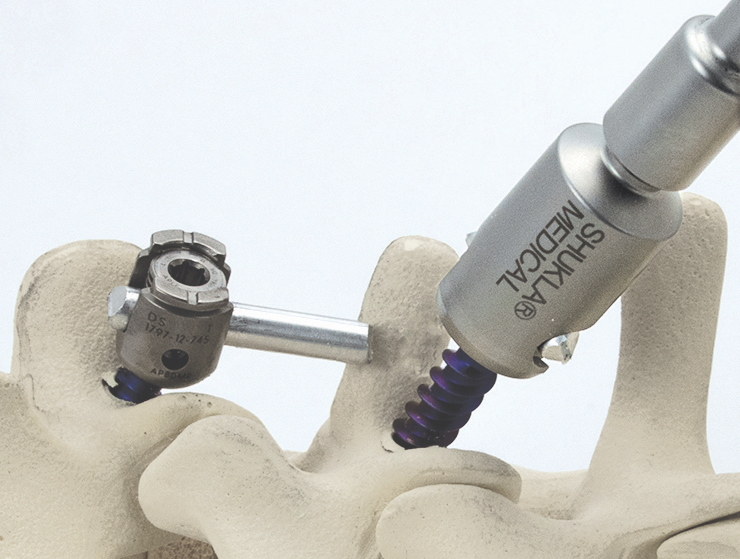 The Xtract-All Spine Universal Spinal Implant Removal System, an orthopedic removal tool from Shukla Medical. Photo via Markforged.